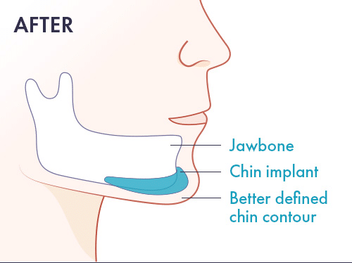 after-chin