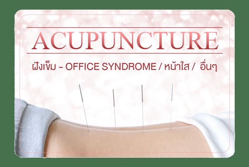 ฝังเข็ม – Acupuncture