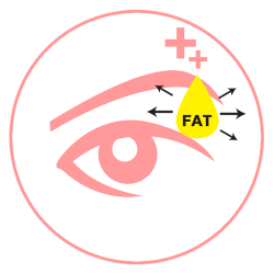 สามารถทำตาสองชั้นและเอาไขมันออกได้ มากกว่าการเย็บ 3 จุด