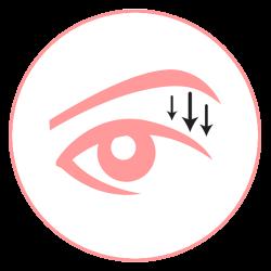 คนที่มีหนังตาตกมาก หนังตาจะตกมาปิดหลังจากยุบบวม