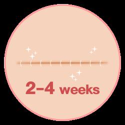 ใช้เวลายุบบวม 2-4สัปดาห์