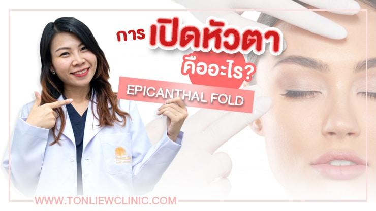 การเปิดหัวตา คืออะไร? (Epicanthal fold)