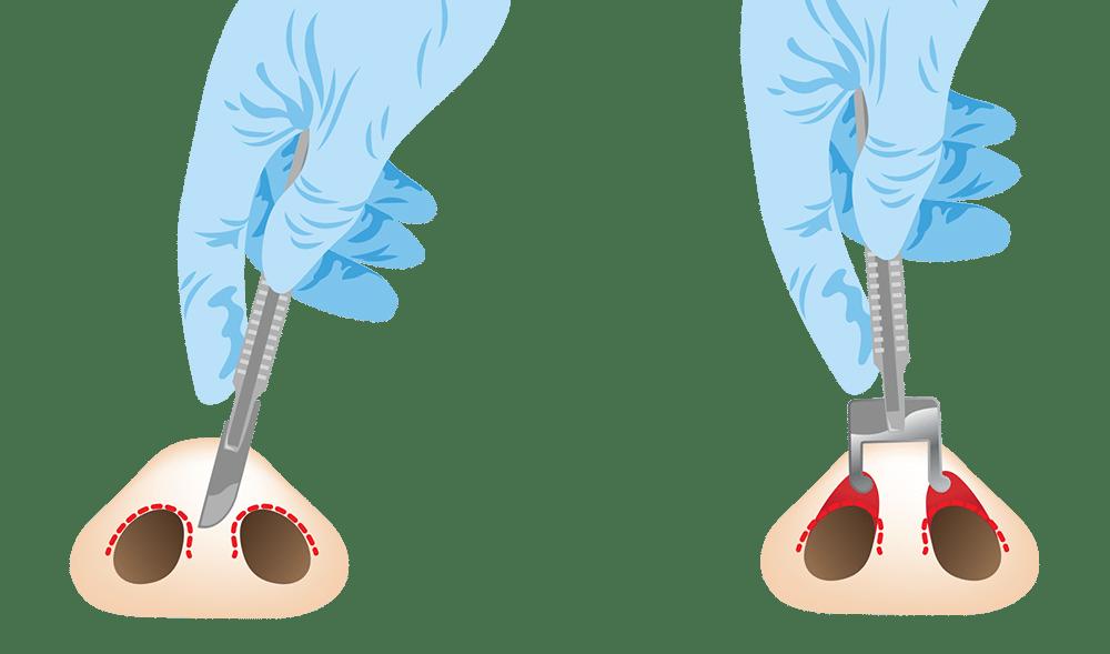 การเสริมจมูกแบบกึ่งเปิด (Semi-open Rhinoplasty)