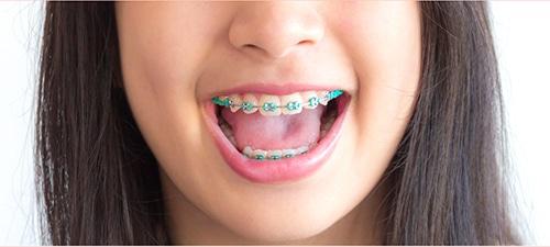 จัดฟันทำปากกระจับได้ไหม?