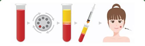 ขั้นตอนการทำ PRP (Platelet rich plasma)