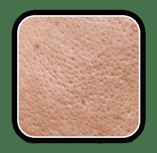 Pore Size Reduction การกระชับรูขุมขน