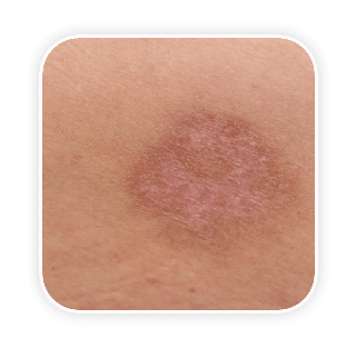 Epidermal Pigment การปรับเม็ดสีผิวชั้นบน