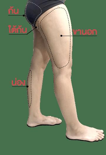 โครงสร้างขาด้านข้าง เพื่อดูดไขมันต้นขา