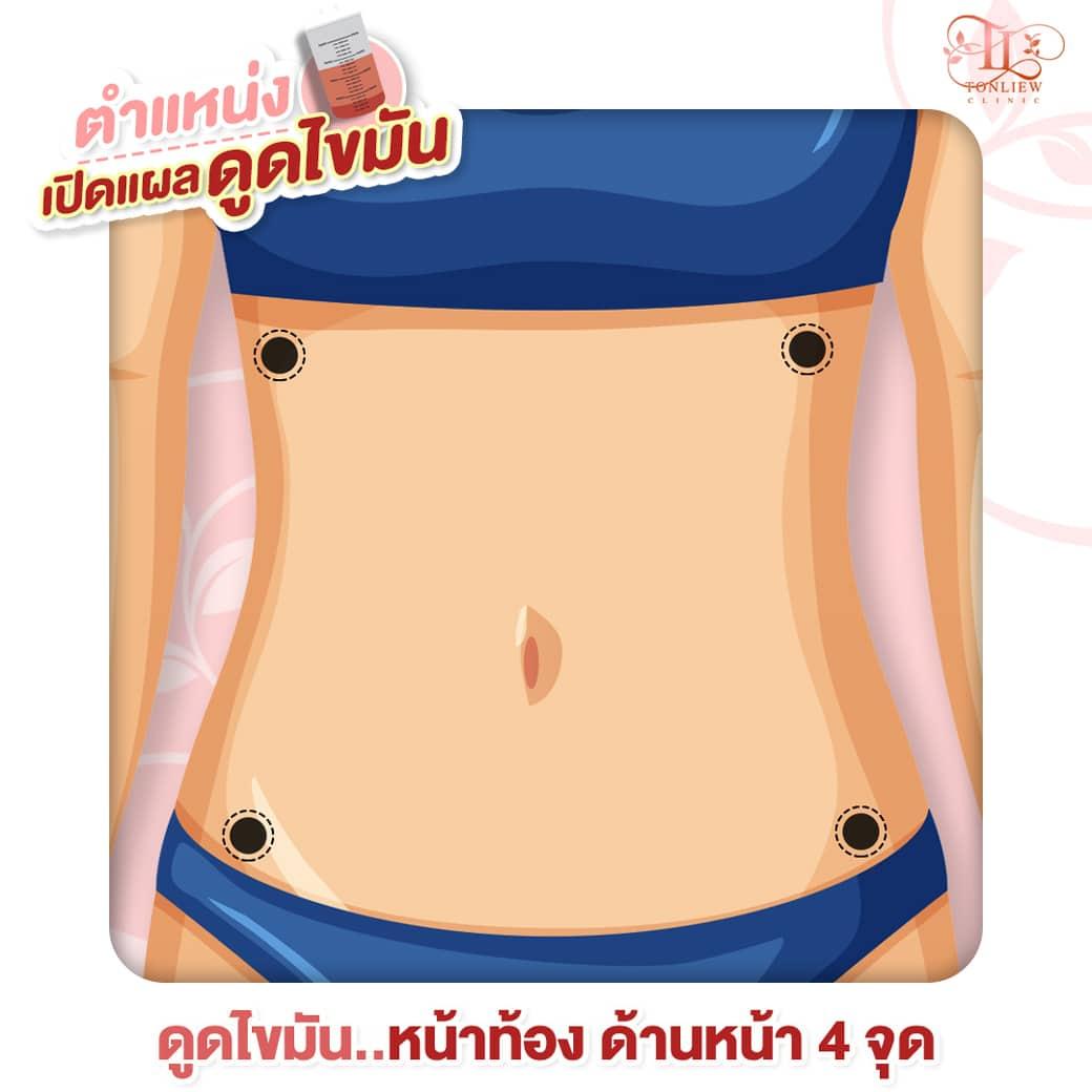 เปิดแผล ดูดไขมันหน้าท้อง