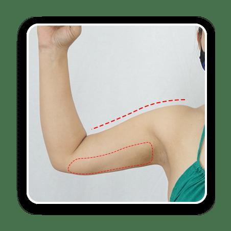 แขนที่มีกล้ามเนื้อใหญ่